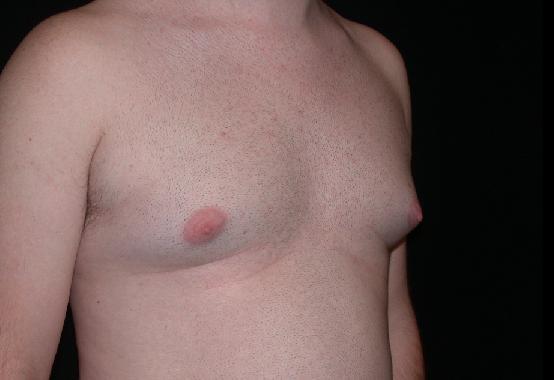 Il petto dopo un mammoplastika 4 mesi