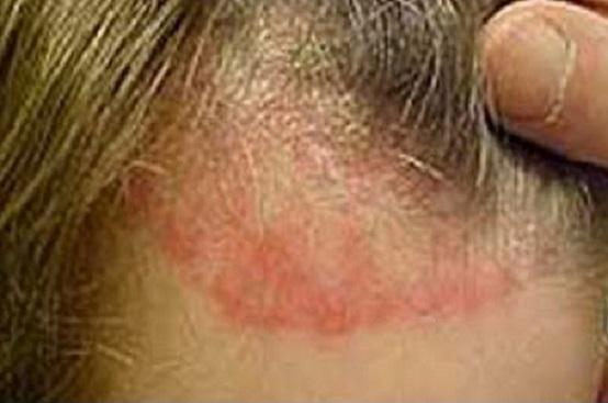 Come distinguere la dermatite atopic da allergia di cibo al bimbo