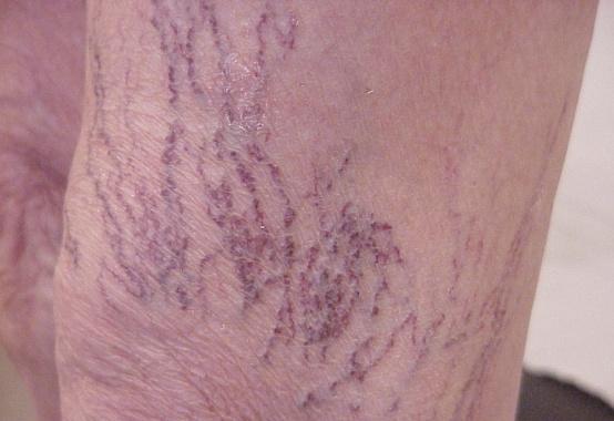 Varicosity di vene su passaggio posteriore